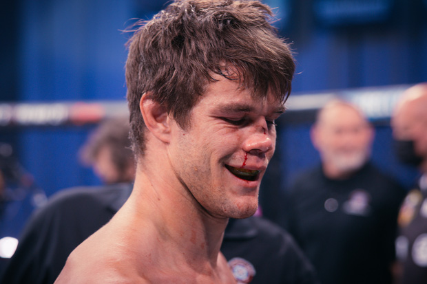 Võ sĩ bị lõm mũi kinh hoàng sau pha giơ mặt hứng đòn, các bác sĩ không cho phép tiếp tục thi đấu - Ảnh 4.