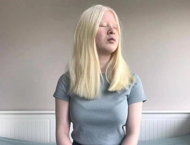 Cô bé bị bố mẹ nhẫn tâm bỏ rơi vì mắc bạch tạng, 16 năm sau lột xác trở thành người mẫu đình đám với thần thái hút hồn hiếm thấy - Ảnh 7.