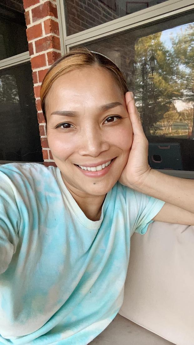 Cận cảnh gương mặt Hồng Ngọc sau 1 năm bị bỏng nặng - Ảnh 2.