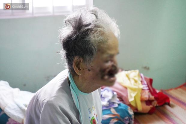 Ngày cuối đời của bà cụ bị ung thư xương hàm, lở loét khắp miệng: Bà chỉ mong chết sớm để con cháu bớt khổ - Ảnh 4.
