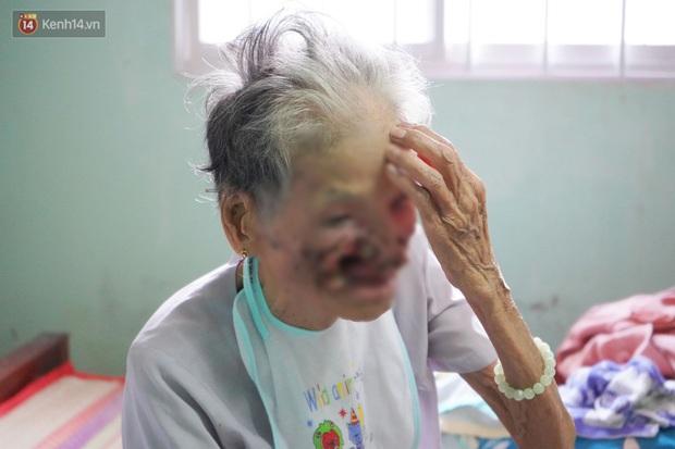 Ngày cuối đời của bà cụ bị ung thư xương hàm, lở loét khắp miệng: Bà chỉ mong chết sớm để con cháu bớt khổ - Ảnh 1.