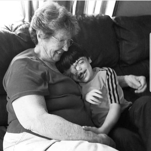 Bé trai sinh ra với 2 khuôn mặt dính liền nhau, bác sĩ khẳng định khó sống sót nhưng diện mạo và cuộc sống sau 17 năm gây kinh ngạc - Ảnh 5.