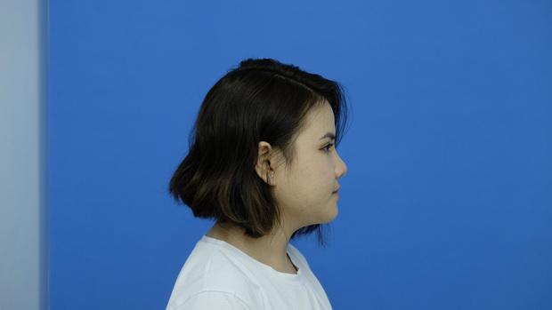 Thoát kiếp mặt lông lá, cô gái trẻ khiến nhiều người bất ngờ, hơn cả là năng lượng tích cực trong mọi khoảnh khắc - Ảnh 4.