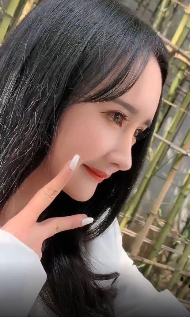 Nở rộ trào lưu phẫu thuật thẩm mỹ mũi và mép tóc giống Dương Mịch, dàn hotgirl xứ Trung giờ ai cũng như ai - Ảnh 7.