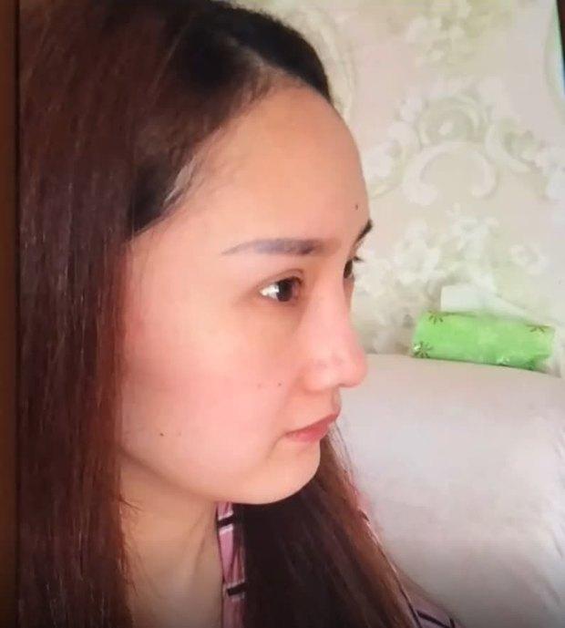 Nở rộ trào lưu phẫu thuật thẩm mỹ mũi và mép tóc giống Dương Mịch, dàn hotgirl xứ Trung giờ ai cũng như ai - Ảnh 3.