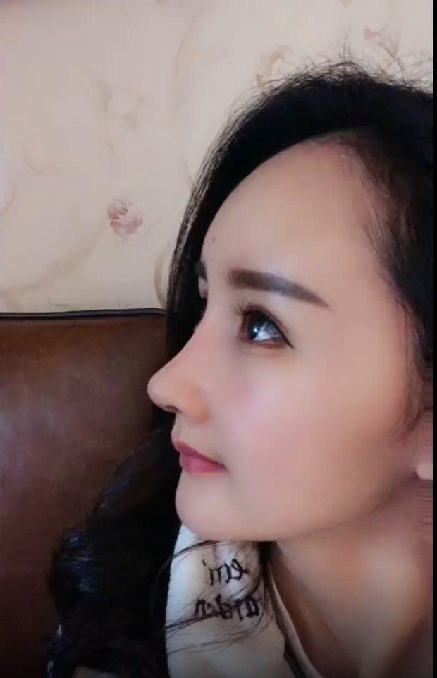 Nở rộ trào lưu phẫu thuật thẩm mỹ mũi và mép tóc giống Dương Mịch, dàn hotgirl xứ Trung giờ ai cũng như ai - Ảnh 14.