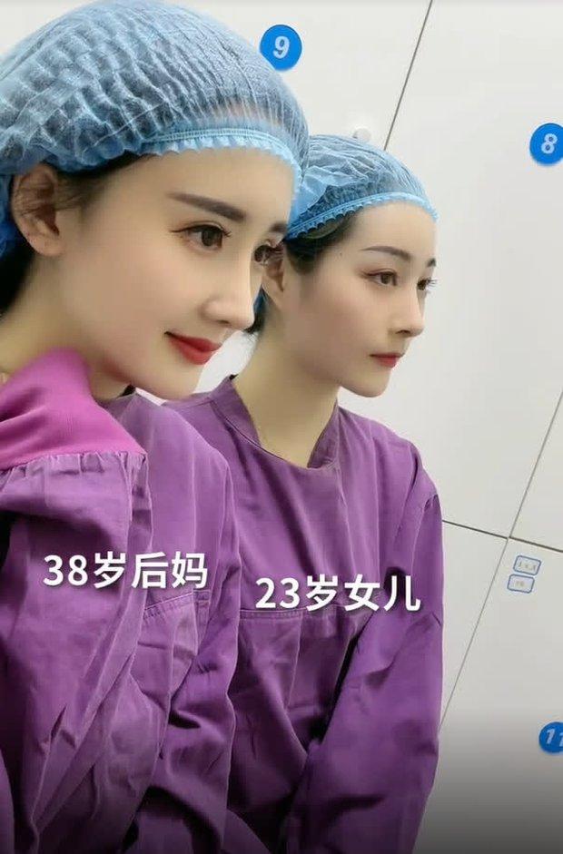 Nở rộ trào lưu phẫu thuật thẩm mỹ mũi và mép tóc giống Dương Mịch, dàn hotgirl xứ Trung giờ ai cũng như ai - Ảnh 12.