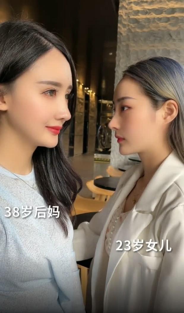 Nở rộ trào lưu phẫu thuật thẩm mỹ mũi và mép tóc giống Dương Mịch, dàn hotgirl xứ Trung giờ ai cũng như ai - Ảnh 13.