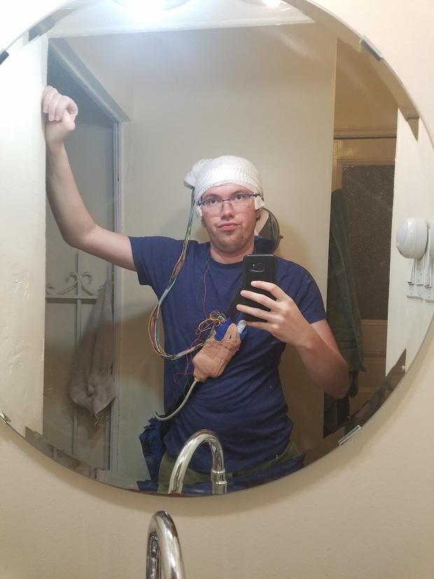 Phẫu thuật não xong, người đàn ông tuyên bố không còn biết sợ là gì - Ảnh 2.