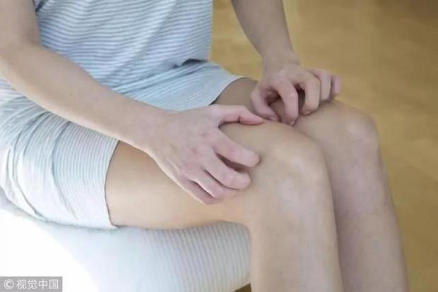 3 biểu hiện bất thường ở chân cho thấy nữ giới đang phải đối mặt với ung thư cổ tử cung, cần đi khám càng sớm càng tốt - Ảnh 3.