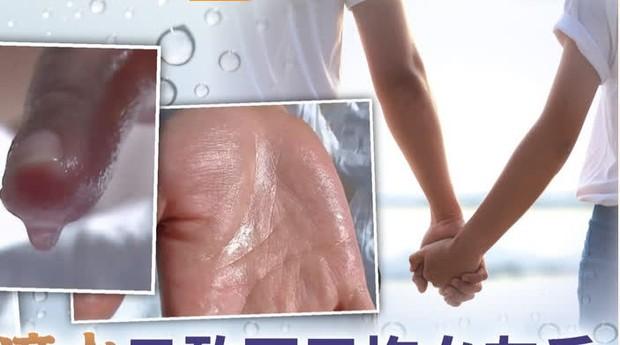 Chàng trai 26 tuổi không dám nắm tay bạn gái vì mồ hôi tay tuôn như suối, đây là hội chứng 300 người mới có 1 người mắc phải - Ảnh 2.