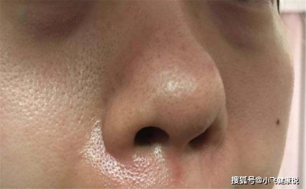 3 bộ phận trên khuôn mặt chuyển sang màu thâm đen cho thấy sức khỏe của bạn đang có vấn đề, cần đi kiểm tra ngay - Ảnh 1.