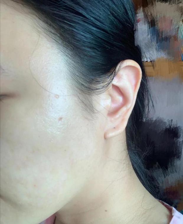 3 bộ phận trên khuôn mặt chuyển sang màu thâm đen cho thấy sức khỏe của bạn đang có vấn đề, cần đi kiểm tra ngay - Ảnh 2.