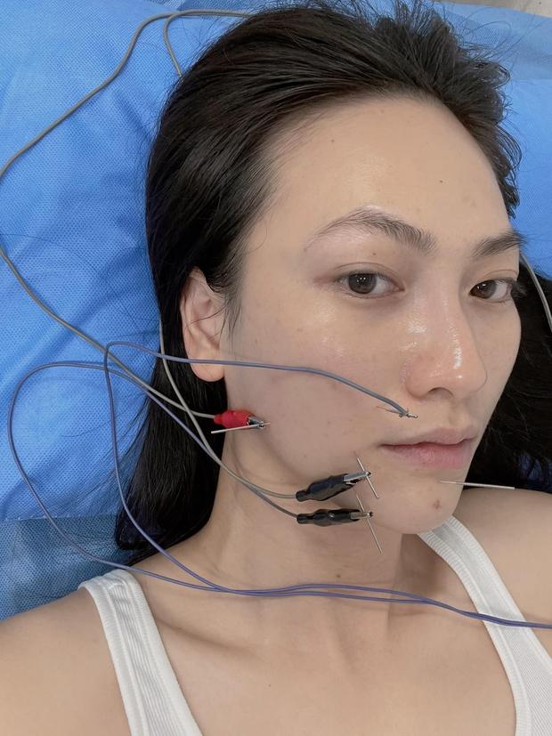 Nữ diễn viên Vbiz chia sẻ bị bệnh tuyến giáp, hoảng vì tê cứng và méo khung môi - Ảnh 5.