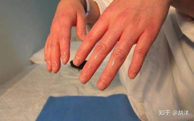 6 bộ phận trên cơ thể đổ nhiều mồ hôi đang cảnh báo bệnh tật, trong đó có cả dấu hiệu đột quỵ, đừng bỏ qua - Ảnh 1.