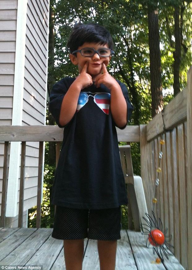 """Vừa ra đời đã bị bác sĩ vô tình làm rơi, bé trai từng được chẩn đoán """"suốt đời không thể cười"""" gây xúc động với hình ảnh sau 12 năm - Ảnh 3."""