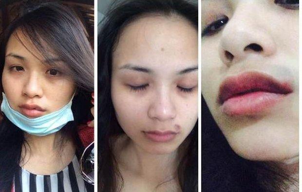 """Trước """"cô Xuyến"""" Hoàng Yến, loạt sao Việt từng bị chồng bạo hành dã man: Dương Yến Ngọc chịu đánh 2-3 lần/ tuần, 1 Hoa hậu còn muốn tự tử - Ảnh 4."""