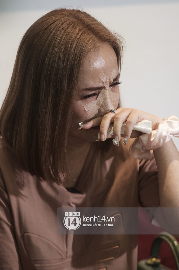 Cô Xuyến Hoàng Yến lộ cận cảnh sống mũi băng chằng chịt sau cú đấm của chồng ở họp báo, liên tục khó thở vì bị gãy xương - Ảnh 3.