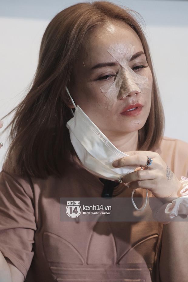 Cô Xuyến Hoàng Yến lộ cận cảnh sống mũi băng chằng chịt sau cú đấm của chồng ở họp báo, liên tục khó thở vì bị gãy xương - Ảnh 5.