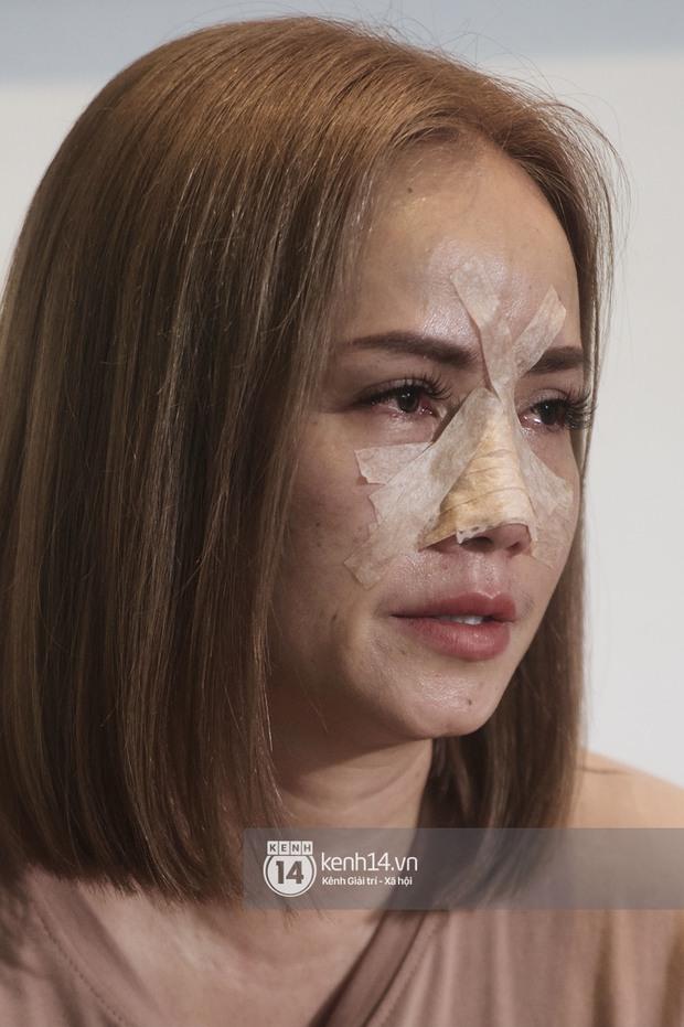 Cô Xuyến Hoàng Yến lộ cận cảnh sống mũi băng chằng chịt sau cú đấm của chồng ở họp báo, liên tục khó thở vì bị gãy xương - Ảnh 4.
