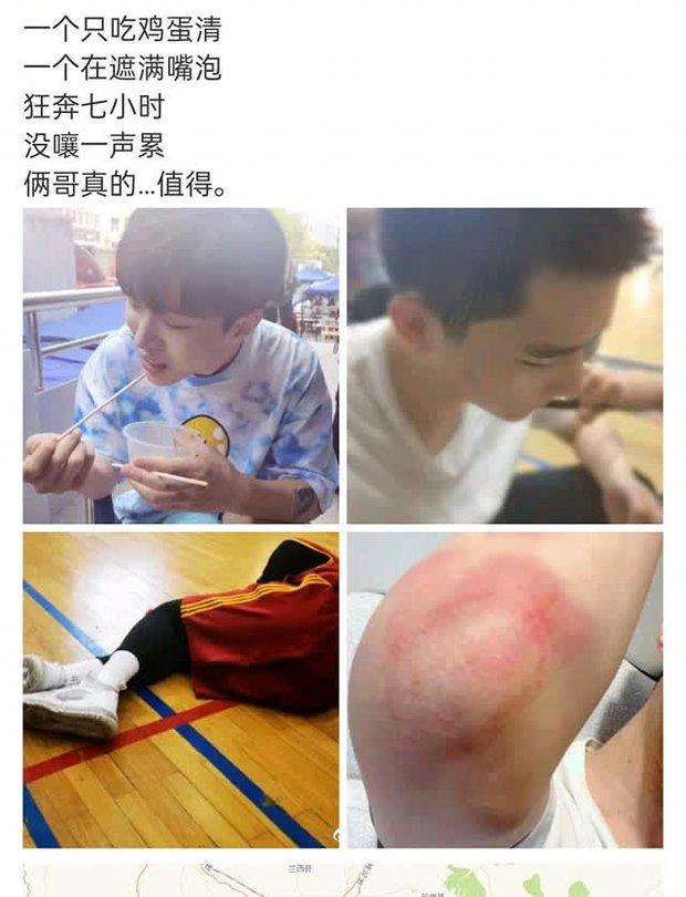 Em trai Phạm Băng Băng lộ thương tích nghiêm trọng, đi cà nhắc sau khi đóng đam mỹ, lý do khiến ai nấy rơi nước mắt - Ảnh 1.