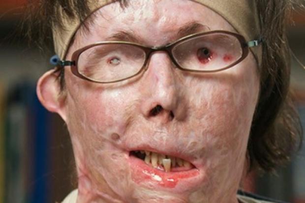 Bị người yêu tạt axit đến biến dạng và mù cả mắt, cô gái gây bất ngờ với ngoại hình hiện tại sau hàng chục cuộc phẫu thuật và cấy ghép mặt - Ảnh 2.