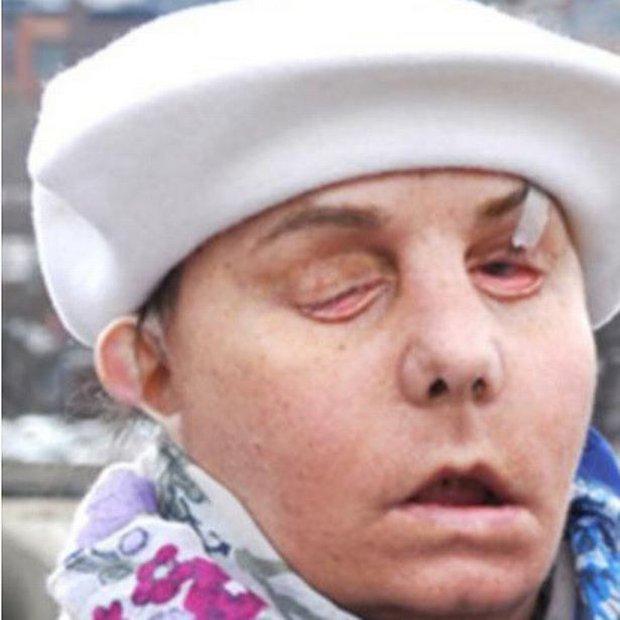 Bị người yêu tạt axit đến biến dạng và mù cả mắt, cô gái gây bất ngờ với ngoại hình hiện tại sau hàng chục cuộc phẫu thuật và cấy ghép mặt - Ảnh 3.