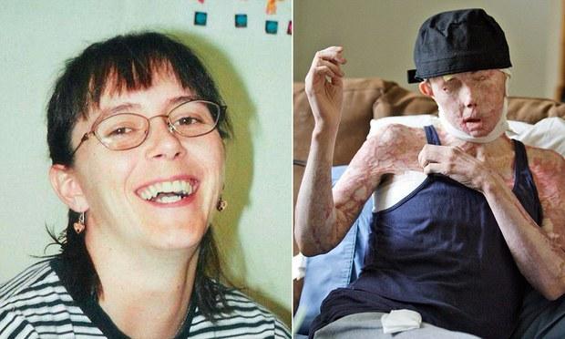 Bị người yêu tạt axit đến biến dạng và mù cả mắt, cô gái gây bất ngờ với ngoại hình hiện tại sau hàng chục cuộc phẫu thuật và cấy ghép mặt - Ảnh 1.