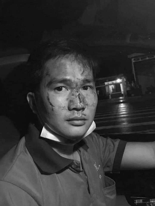 Thanh niên đánh tài xế taxi đổ máu ở Bình Phước đã đưa vợ, con rời khỏi nơi tạm trú - Ảnh 2.