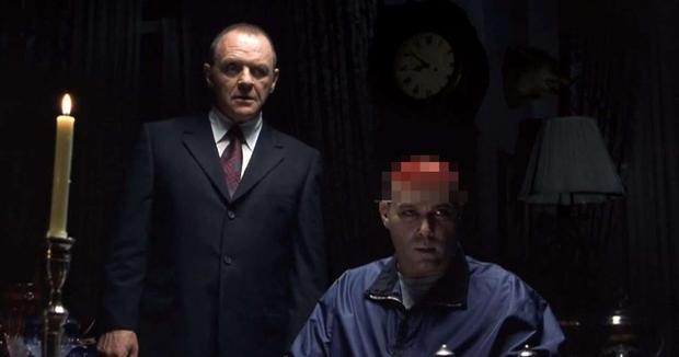 Bác sĩ tâm thần hút máu, chặt xác người tình, khoe khoang tội ác mà giờ vẫn tự do - cảm hứng cho nhân vật phản diện số 1 Hollywood - Ảnh 8.