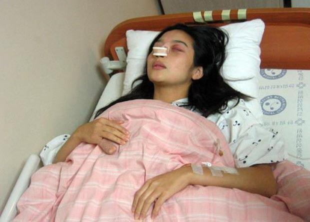 Mỹ nhân Hàn bị bạo hành: Mỹ nhân Hậu Duệ Mặt Trời - Goo Hara bị đánh dã man, rùng mình Choi Jin Sil tự tử liên hoàn và sao nữ sảy thai - Ảnh 13.