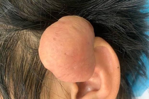 Quảng Nam: Phẫu thuật thành công khối u sụn vành tai lớn hiếm gặp cho bệnh nhân - Ảnh 1.