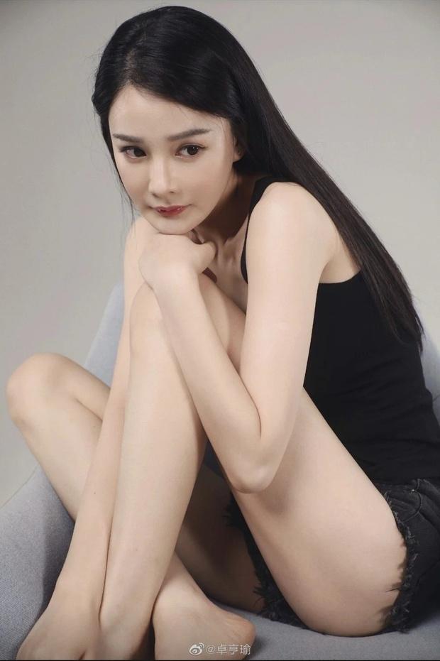 """Cô gái bị kiện vì """"tội"""" trông quá giống Phạm Băng Băng, rơi vào cảnh thất nghiệp, lao đao đến mức phải phẫu thuật cho bớt giống - Ảnh 5."""