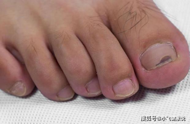 4 biểu hiện trên bàn chân cho thấy tế bào ung thư đã nhắm tới bạn, nếu phát hiện ra thì nên đi khám nhanh còn kịp - Ảnh 2.