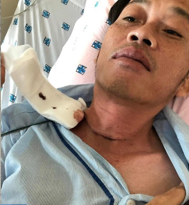 Đàn em thân thiết hé lộ về tình trạng bệnh tình của NS Hoài Linh: Ngày anh điều trị, không nói bằng lời nếu nói to quá sẽ đứt dây thanh quản - Ảnh 3.