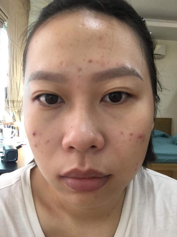 Da vừa khô vừa mụn vì không chăm sóc kĩ mỗi khi đi du lịch, cô nàng tốn 7 tháng để lấy lại làn da mịn màng với quy trình skincare 5 bước - Ảnh 3.