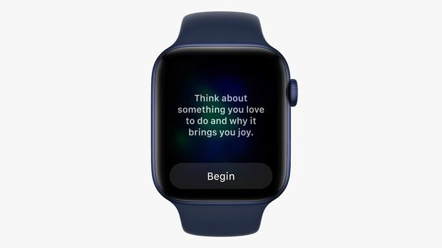 Apple Watch vừa được Apple cập nhật những tính năng gì? - Ảnh 3.
