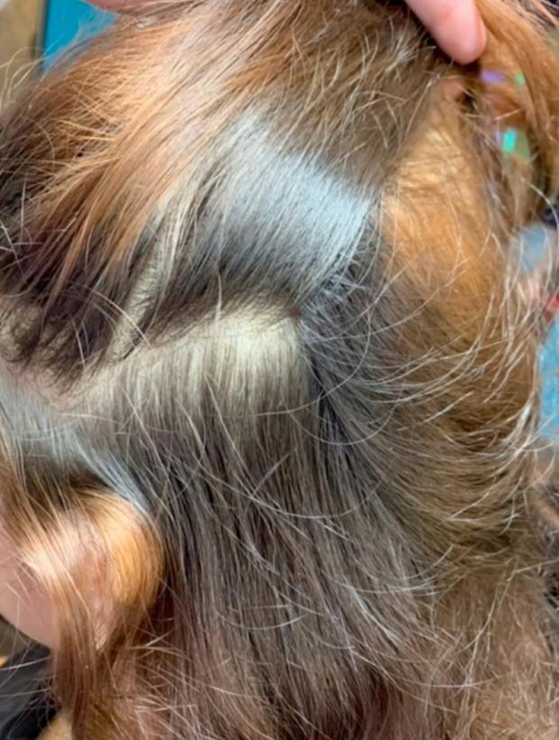 Mang mái tóc bẩn thỉu, lúc nhúc hàng ngàn con chấy đến phòng khám, cô gái khiến chuyên gia thảng thốt vì sốc và kết quả đáng kinh ngạc - Ảnh 6.