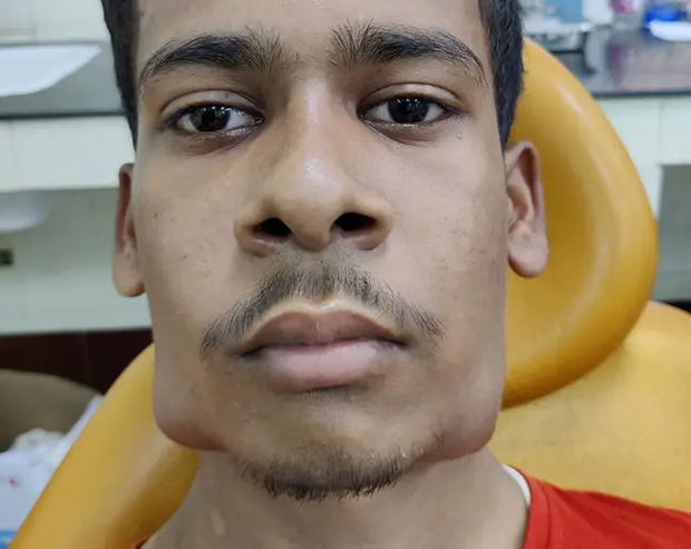 Đi khám bác sĩ vì mặt biến dạng, chàng trai bị nhổ một phát 82 chiếc răng nằm trong khối u to đùng dưới hàm - Ảnh 1.