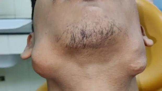 Đi khám bác sĩ vì mặt biến dạng, chàng trai bị nhổ một phát 82 chiếc răng nằm trong khối u to đùng dưới hàm - Ảnh 2.