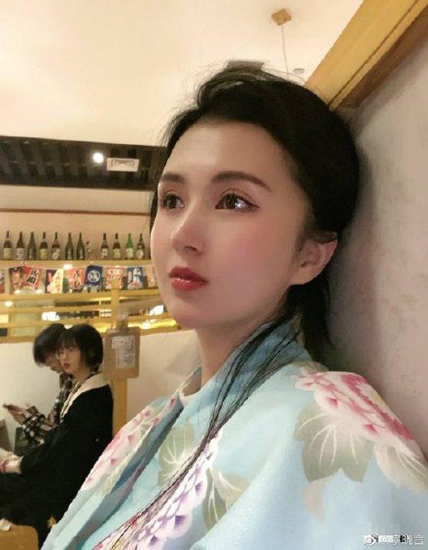 Hot girl Trung Quốc qua đời vì nhiễm trùng sau khi hút mỡ bụng - Ảnh 2.