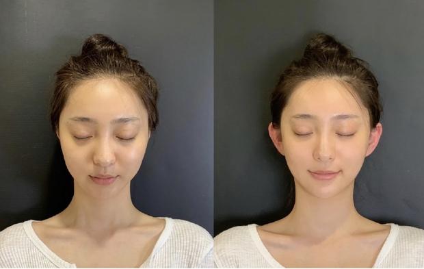 Thẩm mỹ tai yêu tinh - Trào lưu dị hớp hồn bao nam thanh nữ tú xứ Trung: Tai vểnh bao nhiêu trendy bấy nhiêu - Ảnh 3.