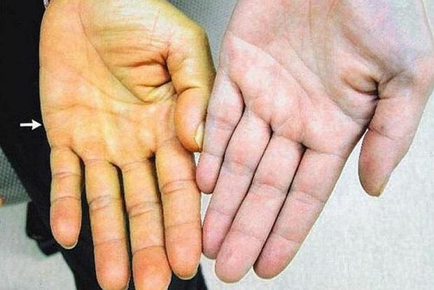 4 biểu hiện bất thường trên da là dấu hiệu sớm của bệnh ung thư gan, cần chủ động đi khám ngay khi gặp phải - Ảnh 1.