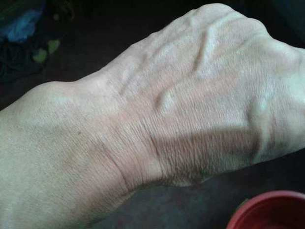 Người gan kém thường có 3 thay đổi bất thường ở bàn tay, đi khám ngay vì rất dễ là dấu hiệu của ung thư gan - Ảnh 1.