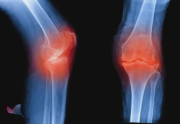 Chàng trai 32 tuổi cột sống bị bẻ gập bắt nguồn từ một tư thế quen thuộc của nhiều người, nếu nặng có thể phải cắt cụt chân - Ảnh 3.