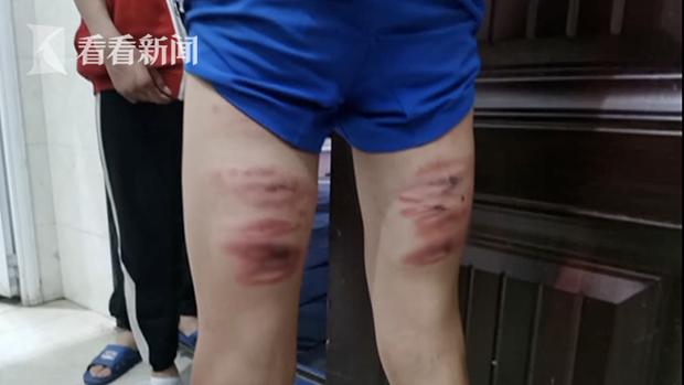Học sinh lớp 8 bị giáo viên đánh bầm dập, không dám hé răng vì sợ bị trừng trị - Ảnh 1.