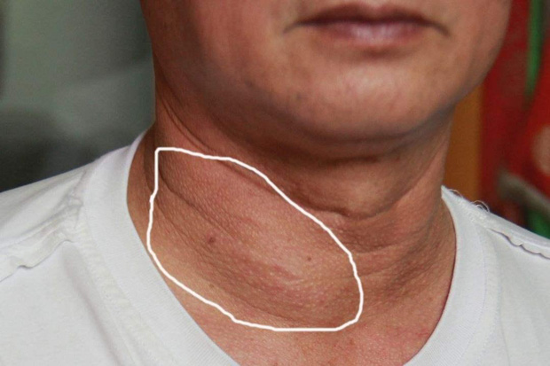 Nam giới tuổi thọ ngắn thường có 2 tăng 1 giảm trên cơ thể, nguy hiểm nhất là dấu hiệu của bệnh tuyến giáp, xơ gan cổ trướng - Ảnh 2.