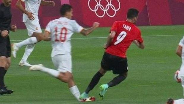 Một ngày sau chấn thương kinh hoàng của cầu thủ Olympic Tây Ban Nha: Cổ chân bầm tím, sưng tấy gây sợ hãi - Ảnh 1.