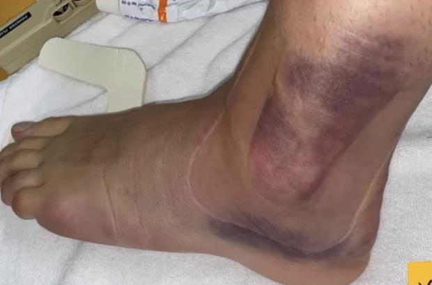 Một ngày sau chấn thương kinh hoàng của cầu thủ Olympic Tây Ban Nha: Cổ chân bầm tím, sưng tấy gây sợ hãi - Ảnh 2.