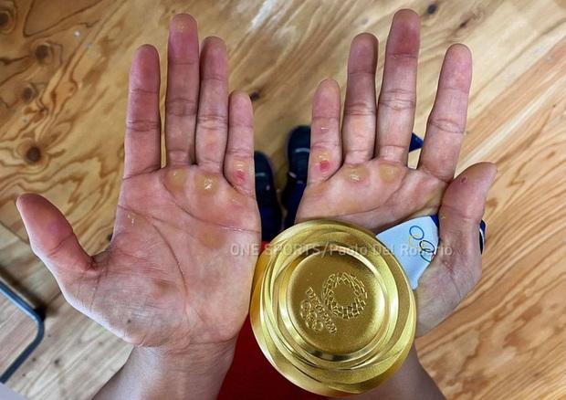 Xót xa hình ảnh đôi bàn tay của VĐV Philippines sau khi giành HCV Olympic, xứng đáng với khoản thưởng rất nhiều số 0 cô nhận được  - Ảnh 1.